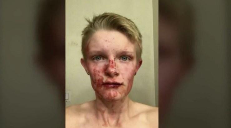 Lezbiyen Çift Çocuklu Bir Çift Tarafından Saldırıya Uğradı!