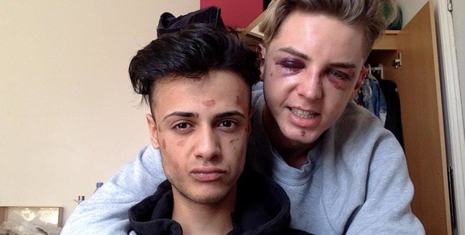 """Korkunç Homofobik Saldırı Kurbanı Çift: """"Onları Asla Affetmeyeceğim"""""""