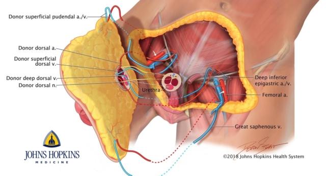 Dünyanın İlk Tam Penis ve Testis Torbası Nakli Yapıldı!
