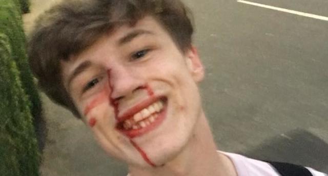 Homofobik Saldırıya Uğrayan Gençten Asla Unutulmayacak Selfie!