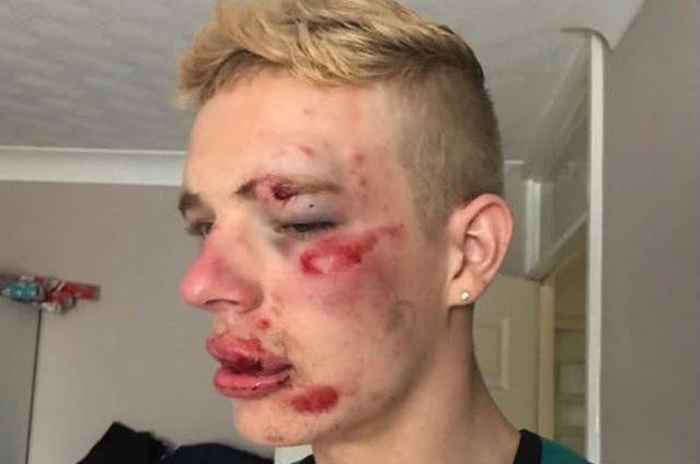 Homofobik Saldırıya Uğrayan Genç: Ben Buyum ve Asla Vazgeçmeyeceğim!