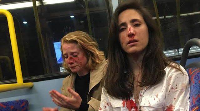 Lezbiyen Çifte Vahşice Saldıran Üç Genç Suçlu Bulundu