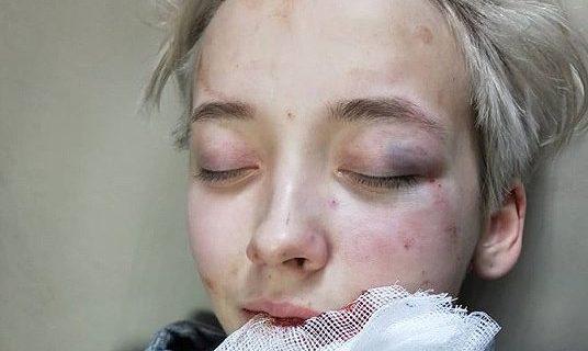 Rusya'da 7 Erkek Tarafından Homofobik Saldırıya Uğrayan Genç Kız Hastanelik Oldu