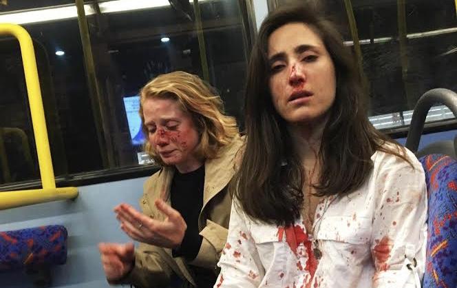 Saldırıya Uğrayan Çift, Kadın Düşmanlığını Bir Nefret Suçu Olarak Kabul Ettirmek İçin Mücadele Ediyor!