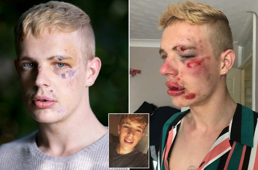 Eşcinsel Gencin Uğradığı Korkunç Saldırı Daha Ağır Cezaları Gündeme Getirdi