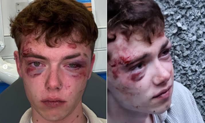 İngiltere'deki Korkunç Homofobik Saldırılar Polisi Harekete Geçirdi